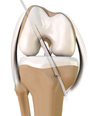 ACL Reconstruction